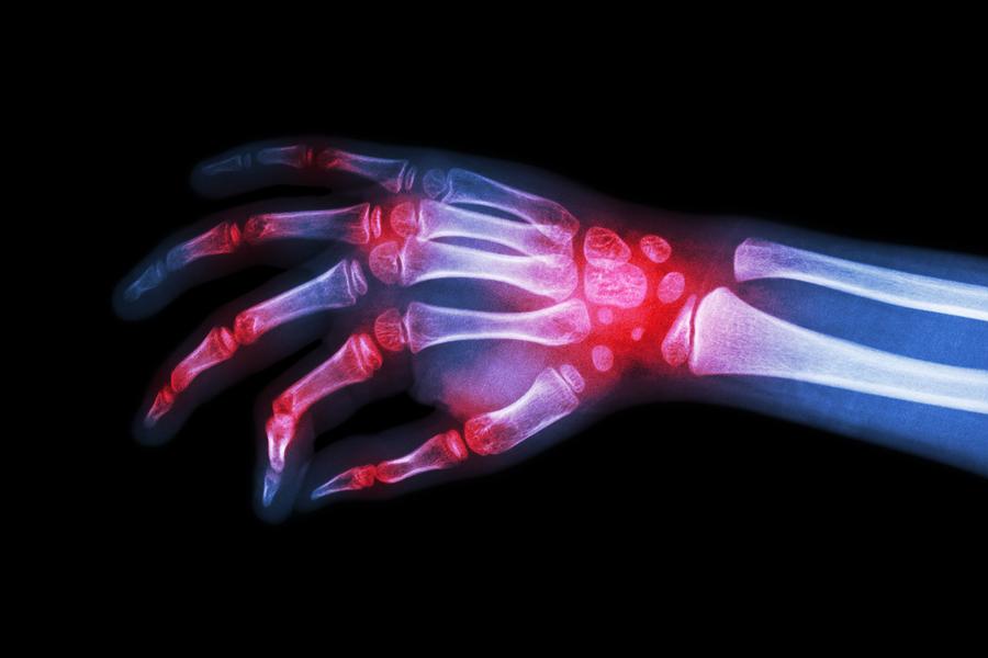 durere articulară tiroxină)
